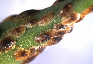 bakterii-dlya-vygrebnyx-yam